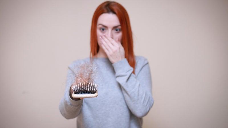 Hair Loss 4818772 1920