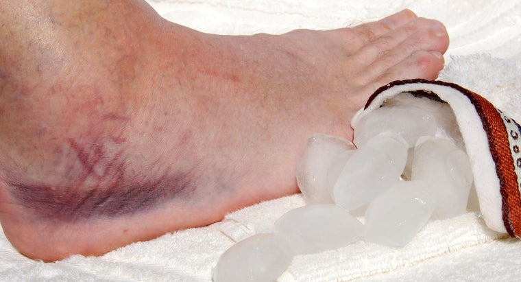 can-hypothyroidism-cause-swollen-ankles