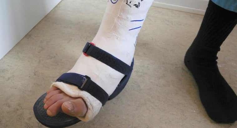 long-should-swelling-out-broken-ankle