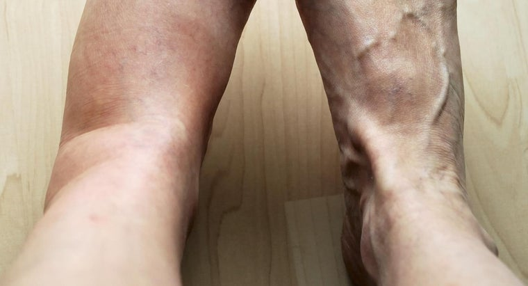 possible-causes-pain-swelling-left-leg