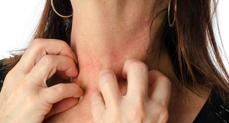 possible-causes-rash-around-neck-chest