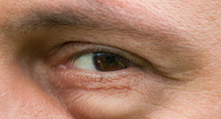 possible-causes-swelling-under-eyes