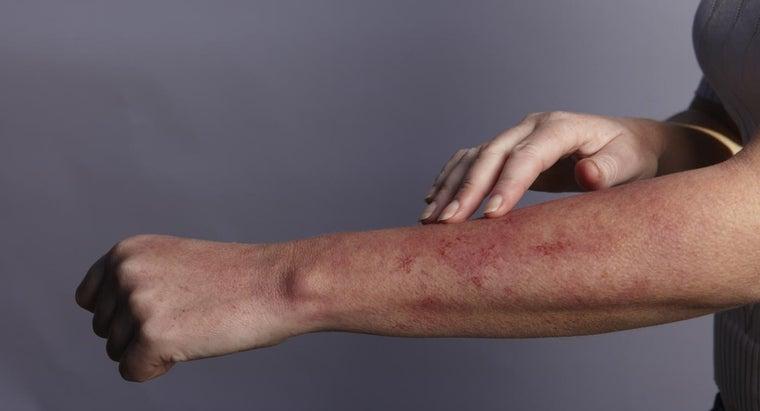red-rash-under-skin