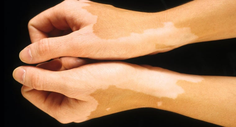 types-skin-discoloration-diseases