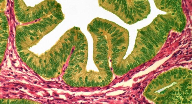 uterine-polyps-cancerous